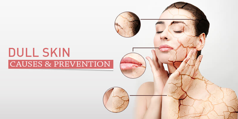 Dull-Skin Causes and Prevention