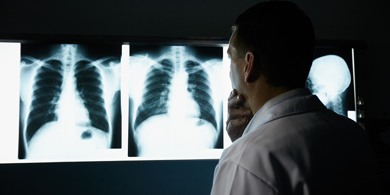 air pollution now leading cause of lung cancer