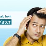 Hard water and dry scalp during winter